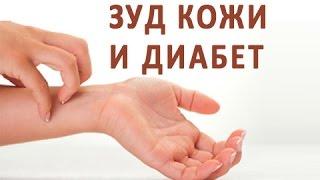 видео Аллергия на коже, лечение высыпаний на коже, если чешется кожа