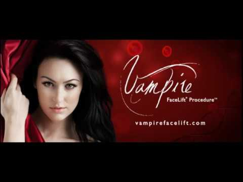 Non-surgical Facial Rejuvenation with the Vampire FaceLift