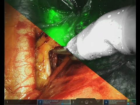 Da Vinci Xi: Sentinel node biopsy with Indocyanine green - By D Vitobello and G Siesto