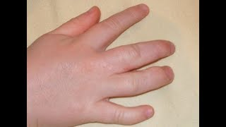 How to Reduce Swollen Fingers During Pregnancy | How to Treat Swollen Fingers at Home