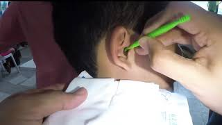 Free Earwax Removal & Ear Cleaning in the City