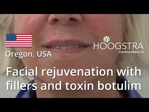 Facial rejuvenation with fillers and toxin botulim (16006)