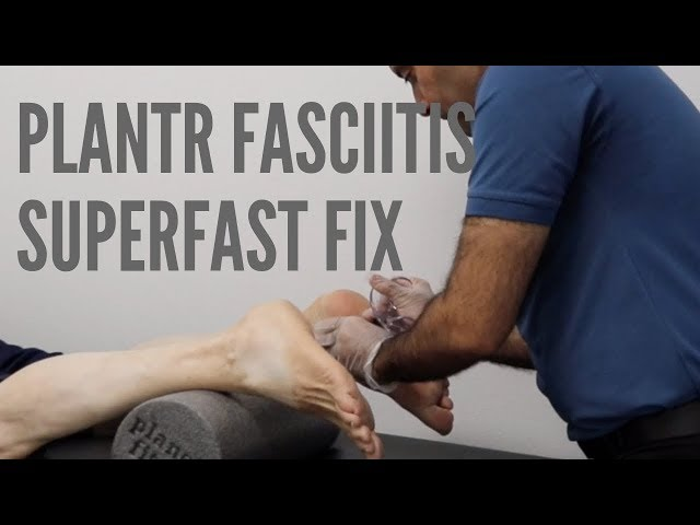 5 Months of Plantar Fasciitis Fixed with ASTR + FOLLOW UP!!!!