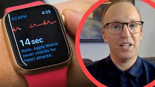 The apple watch actually saved my life: Here's how