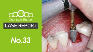 (ENG) #36 Lower posterior immediate implant placement with SQ fixture and Septum drill