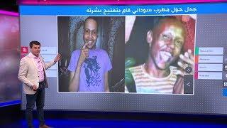 مطرب سوداني يعترف بأخذ حقن لتفتيح بشرته، فكيف علق السودانيون⁉️🤔🇸🇩