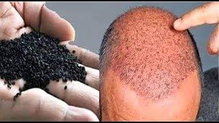 ये हैं वो इकलौती चीज जो गंजे सिर पर फिर से उगा सकती  है बाल 100% Effective Hair Regrowth Remedy