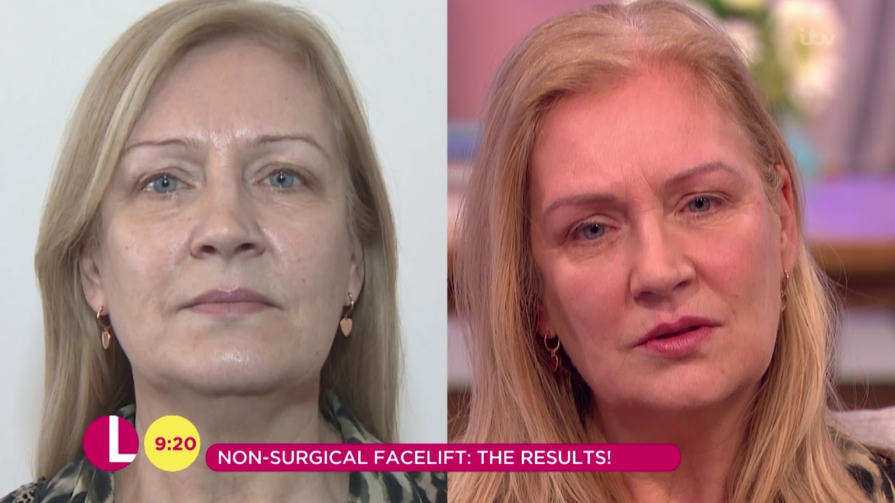 Non-Surgical Facelift Results | Lorraine