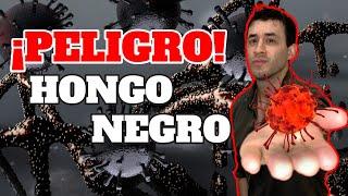 COVID 19| ¡ALERTA MUCORMICOSIS!: HONGO NEGRO MUTILA PACIENTES CON CORONAVIRUS