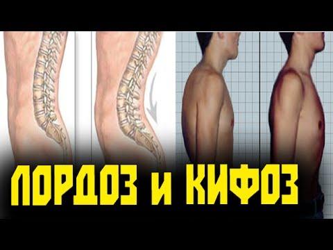 Противопоказания при остеохондрозе шейного и поясничного