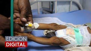 Desnutrición infantil: un problema que agobia y agudiza la crisis en Venezuela