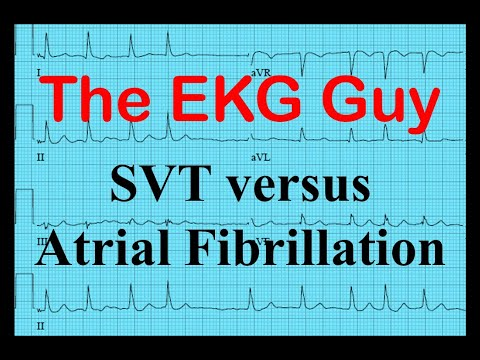 Ekg Ecg Svt Vs Atrial Fibrillation The Ekg Guy Www Ekg Md Youtube