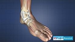 hqdefault - Broken Ankle Causing Back Pain