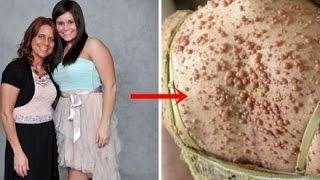 Kinh hoàng người phụ nữ mọc 6,000 khối u trên cơ thể bởi chứng bệnh lạ không chữa được