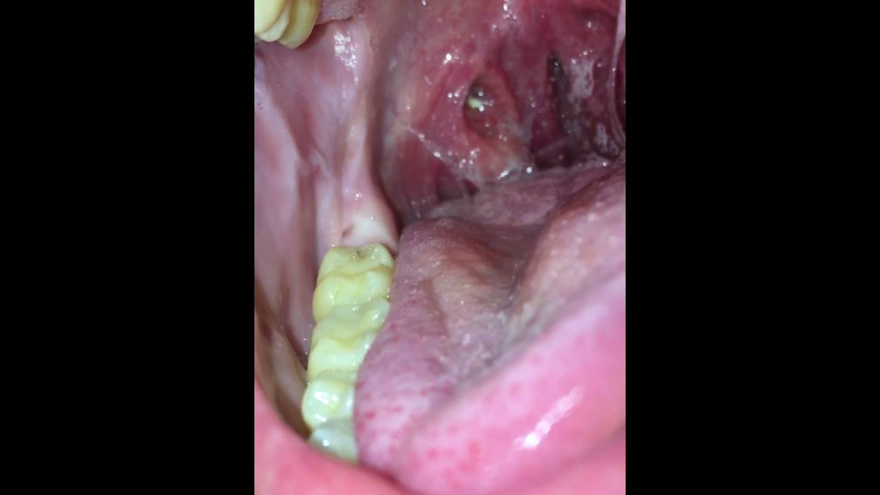 How To Remove Tonsil Stones With Your Tongue With Zoom