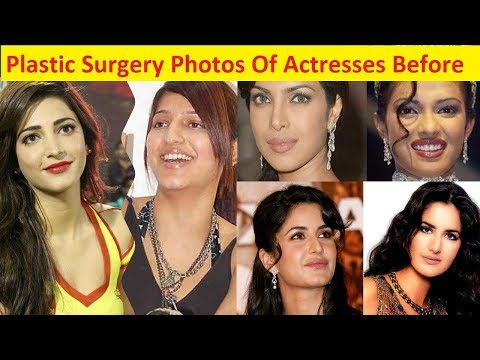 Top 8 Plastic Surgery Photos Of Bollywood Actresses Before and After