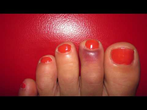 1-Step Jammed Toe Relief