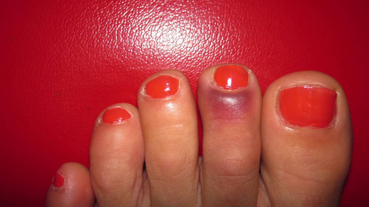 1-Step Jammed Toe Relief - YouTube