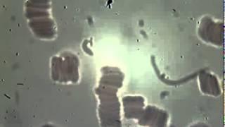 видео Анализ крови на витамины и микроэлементы: сдать, минералы, норма, на нехватку