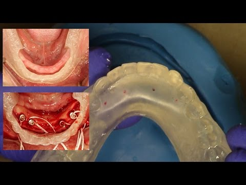 """Easy Clinical & Laboratory Technique for Fabricating an """"In-House Surgical Guide"""" for Overdentures"""