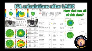 Methods for IOL calculations for Cataract Surgery after prior LASIK