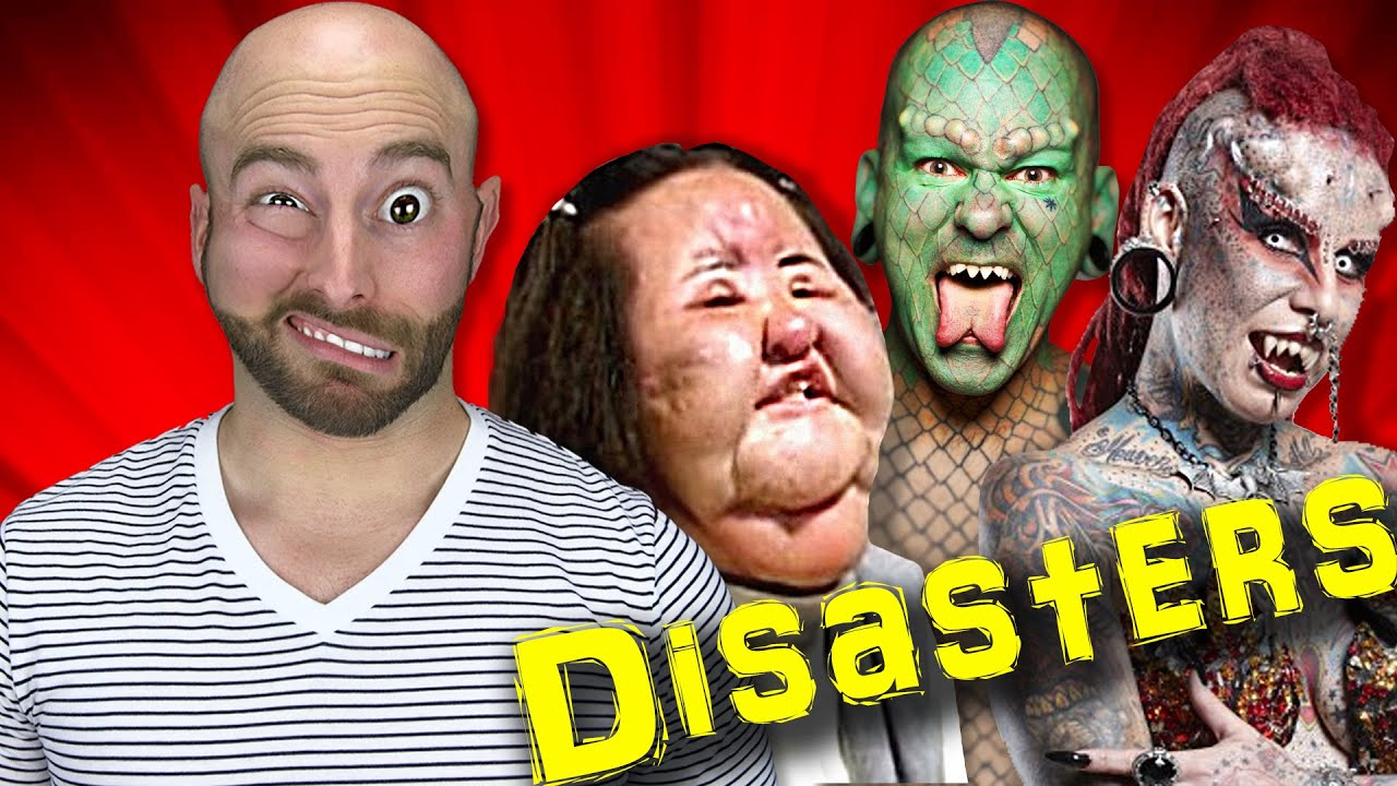 The 10 Worst Plastic Surgery Disasters Youtube