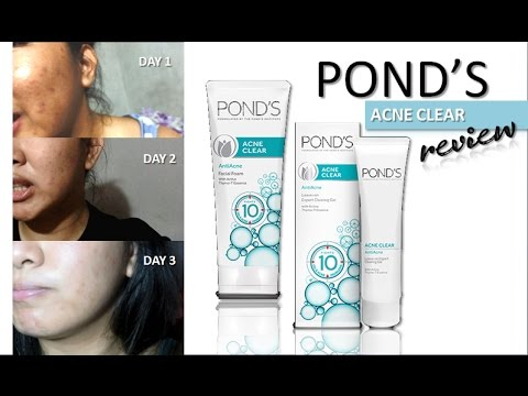 c6c65ea79eb8 Pond s Acne Clear Review (3 Day Challenge)   OhMyYnah - YouTube