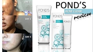 Pond's Acne Clear Review (3 Day Challenge) | OhMyYnah