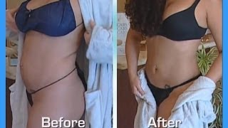 Repeat youtube video Abdomen and Waist- Smartlipo-Tumescent Liposuction