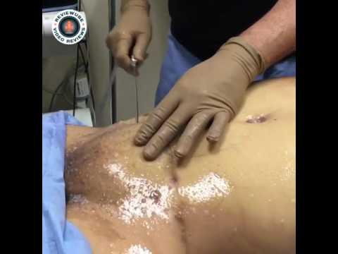Get Liposuction for my Pubic Area Dallas