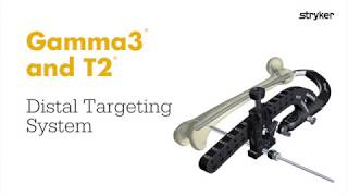 Stryker Trauma & Extremities | Femoral Nailing | Distal Targeting System