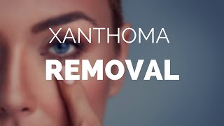 Xanthoma removal, its easy with Xanthel, Xanthoma removal cream.