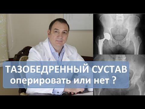 Операция тазобедренного сустава: делать или нет. Эндопротезирование.