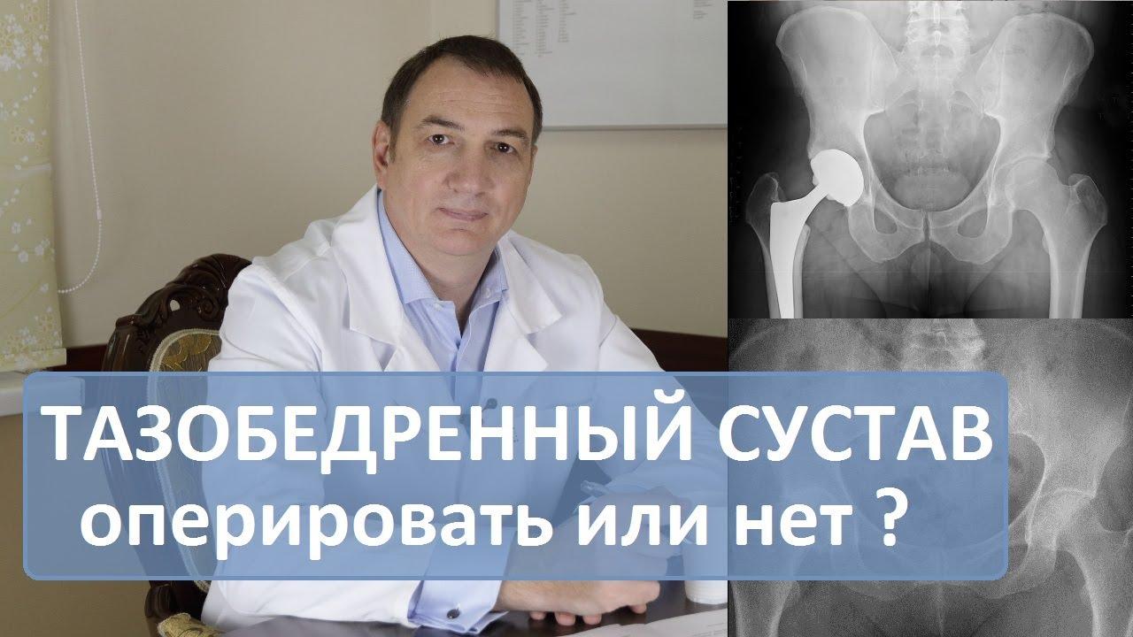 Замена тазобедренного сустава смотреть видео отложением солей мочевой кислоты в суставе