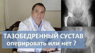 Операція кульшового суглоба: робити чи ні. Ендопротезування.