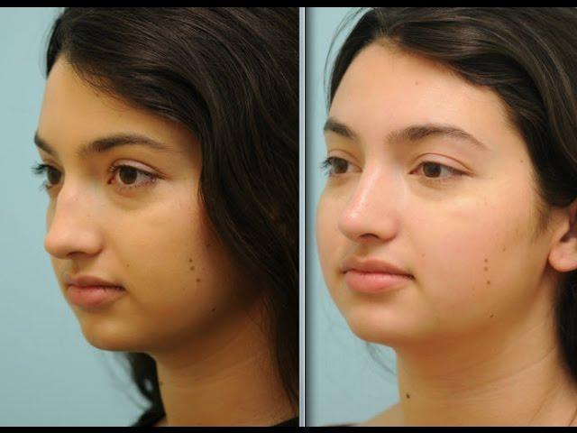 Dallas Rhinoplasty Nose Job Testimonial for Dorsal Hump Reduction