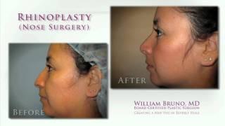 Beverly Hills Rhinoplasty (Nose Surgery) | Dr. William Bruno