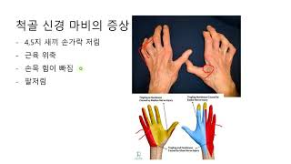 새끼손가락 쪽으로 손저림을 호소하는 환자가 많습니다. …