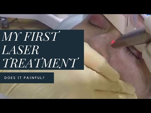 Beauty Review: Fractional CO2 Laser at Premier Clinic