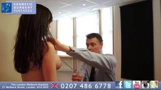 Breast Augmentation patient review - UK Cosmetic surgeon Mr Miles Berry Thumbnail