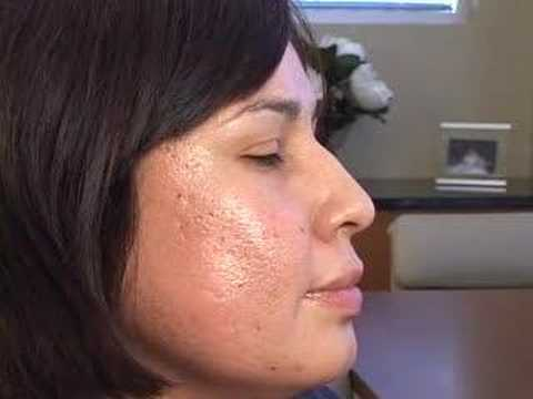 PLASTIC SURGERY:  CROSS ACNE SCARRING TREATMENTS  JOURNEY
