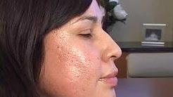 hqdefault - Plastic Surgery Acne Treatments