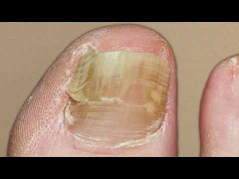 Laser Treatment Toenail Fungus – Massapequa, Bethpage, Farmingdale – Podiatrist Mark Gasparini