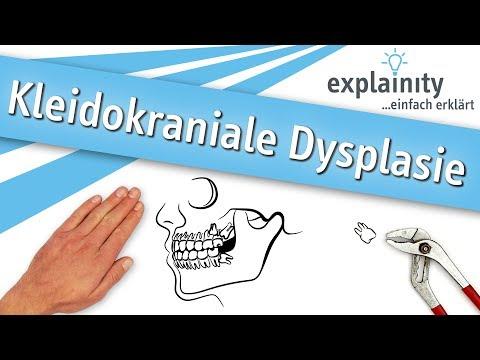 Kleidokraniale Dysplasie einfach