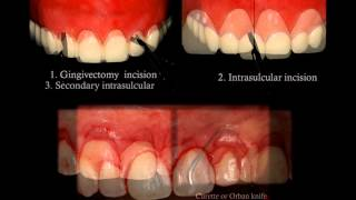 How to improve the smile with esthetic crown lengthening? (PART 3 of 3, SurgicalMaster QuickLecture)