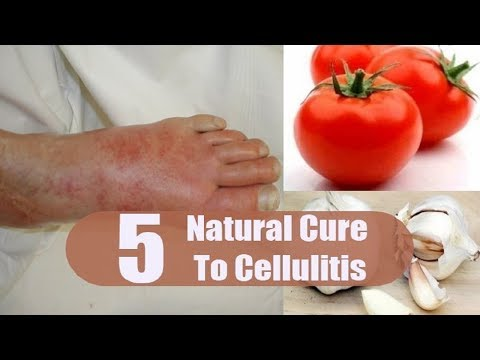 5 Home Remedies for Cellulitis   By Top 5.