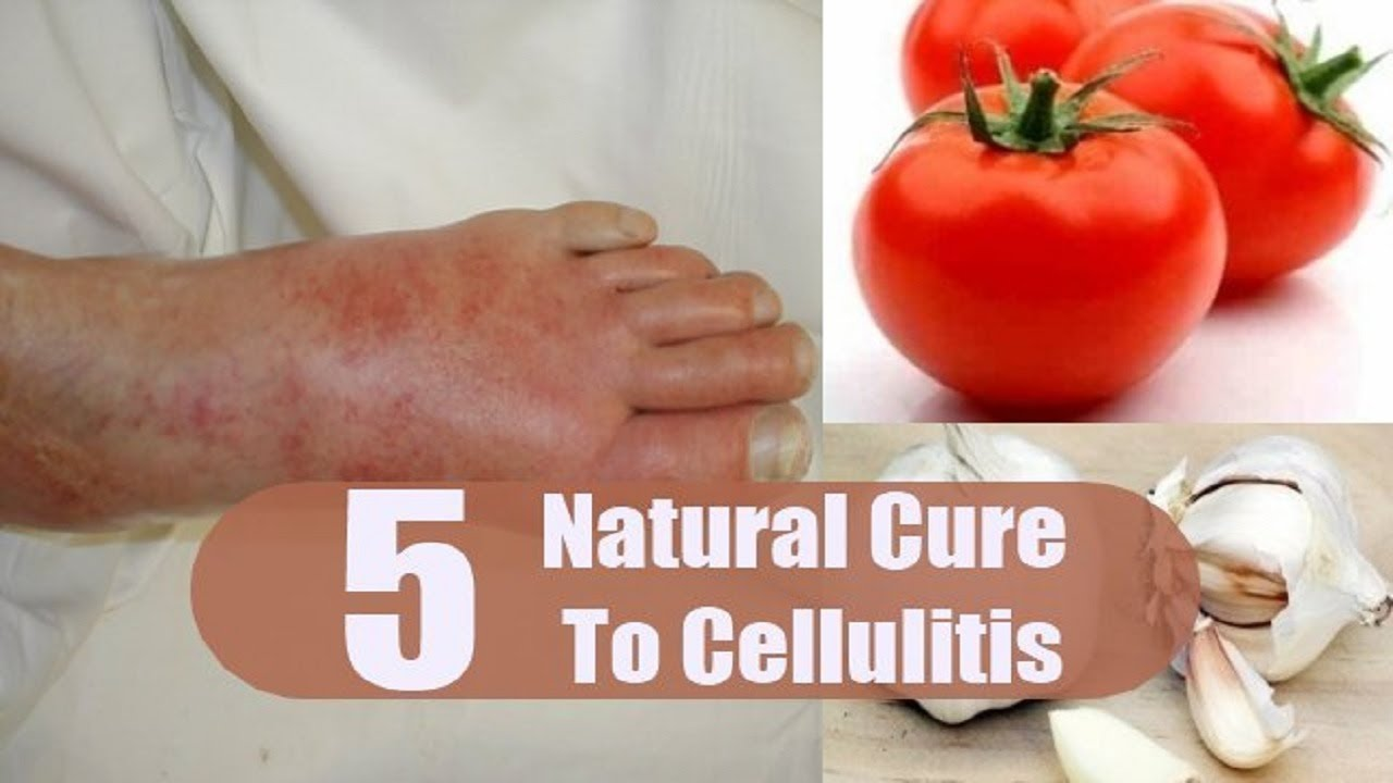 Home Remedies For Cellulitis YouTube - Natural home remedies for cellulitis