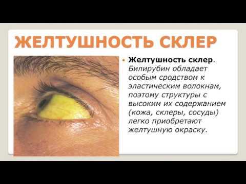 Гепатит Е - Энциклопедический слоарь вирусные гепатиты