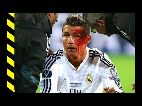 Cristiano Ronaldo 3 worst injuries of whole football career
