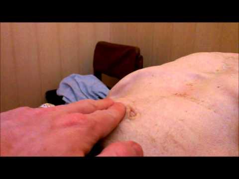 Аневризма брюшной аорты.wmv